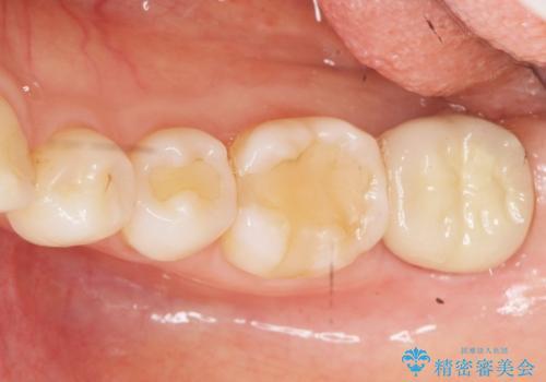 歯が割れた 親知らずの移植 30代女性の症例 治療後