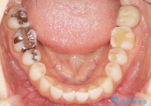 歯が割れた 親知らずの移植 30代女性の治療後