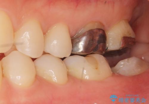 歯が割れた 親知らずの移植 30代女性の治療中