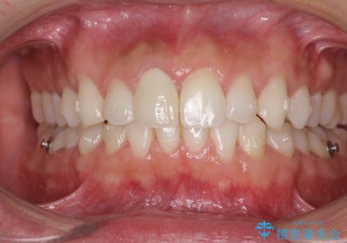 口が閉じにくい インビザラインによる矯正治療の治療中