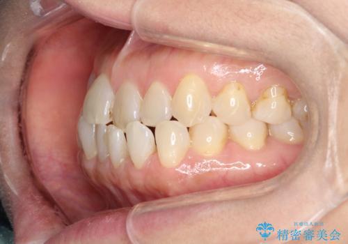 前歯の隙間 インビザラインによる目立たない成人矯正の治療前