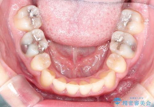 犬歯が変な位置にある 抜歯矯正により正しい位置への治療後