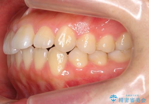 出っ歯 インビザラインで歯を抜かない治療の治療前