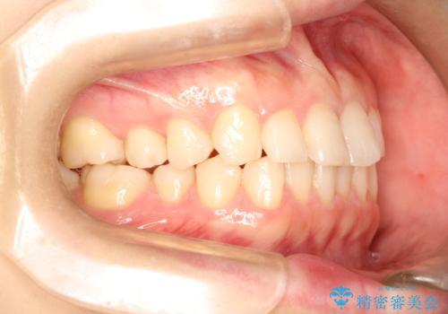 【インビザライン】前歯のガタガタを綺麗にしたい。の治療前