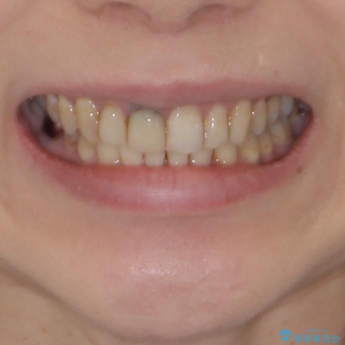 歯並びと目立つ金属を治したい 総合歯科治療の治療後(顔貌)