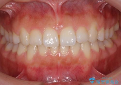 出っ歯 インビザラインで歯を抜かない治療の症例 治療後