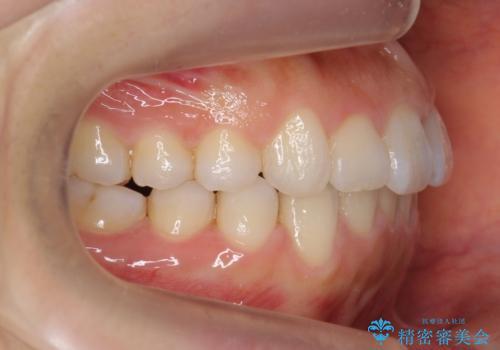 出っ歯 インビザラインで歯を抜かない治療の治療後