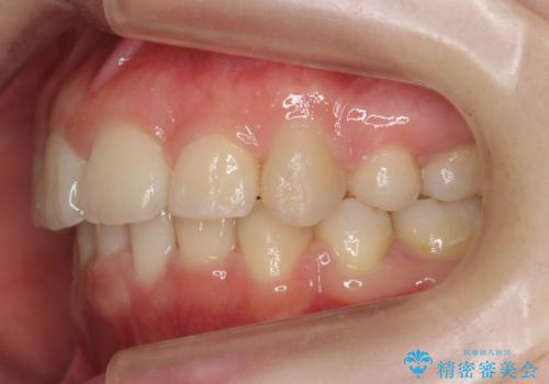20代女性 出っ歯 口元を引っ込めたいの治療後