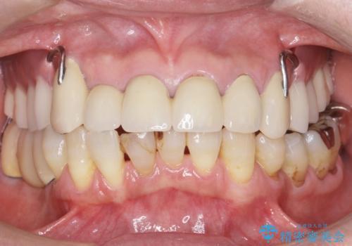 前歯がかけた、ぐらぐらする 60代女性の治療前