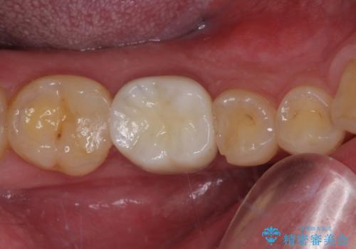気がついたら歯が欠けていた 奥歯のセラミック補綴の治療後