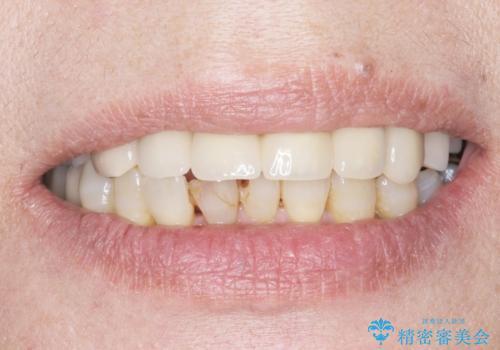 奥歯がないまま過ごしていたら前歯もぐらぐらしてきた 60代女性の治療中