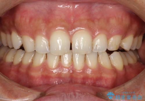 歯と歯の間の着色をPMTCでできる限り除去の治療前