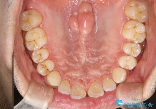 歯と歯の間の着色をPMTCでできる限り除去の治療後
