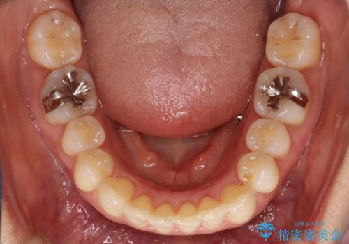 重度のガタガタのインビザラインによる非抜歯矯正の治療後
