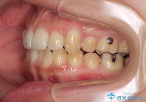 八重歯の抜歯矯正 補助装置を用いたインビザライン矯正の治療中