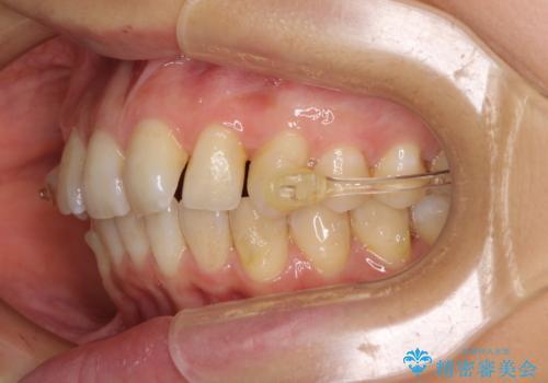 インビザラインによる矯正治療 カリエールディスタライザーを用いた奥歯の咬み合わせ改善の治療中
