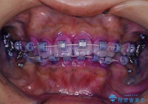 ワイヤー矯正を初めてから2カ月 歯磨き指導とPMTCの治療前