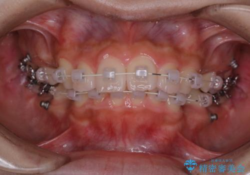 ワイヤー矯正を初めてから2カ月 歯磨き指導とPMTCの治療後