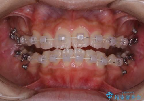 ワイヤー矯正を初めてから2カ月 歯磨き指導とPMTCの症例 治療後
