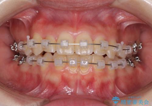 前歯2本が欠損 抜歯矯正でデコボコを治すの治療中