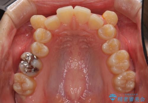 八重歯の抜歯矯正 補助装置を用いたインビザライン矯正の治療前