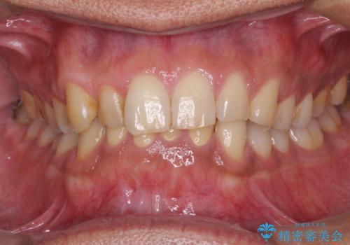 強い咬み合わせで削れた前歯 セラミッククラウンで自然な形にの治療後