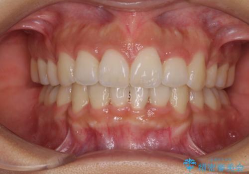 スッキリとした口元へ 出っ歯の抜歯矯正の治療後