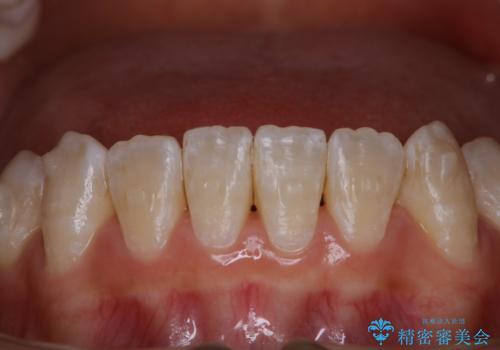 インビザライン矯正治療中にPMTCでお口の中を清潔にの治療前