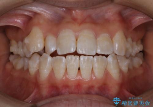 インビザライン矯正治療中にPMTCでお口の中を清潔にの治療後