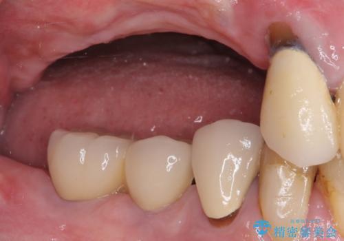 上顎奥歯の欠損をインプラントで補綴治療の治療前