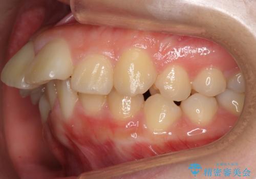 20代女性 出っ歯 口元を引っ込めたいの治療前