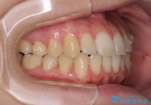 気になる前歯を整えたい インビザライン・ライトでの矯正治療の治療中