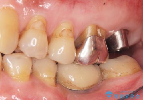 奥歯がわれている ソケットリフトを併用した奥歯のインプラント 60代男性の治療後