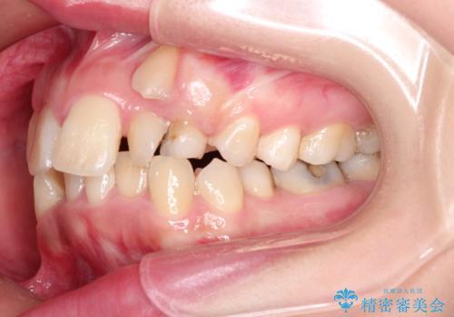 犬歯が変な位置にある 抜歯矯正により正しい位置への治療前