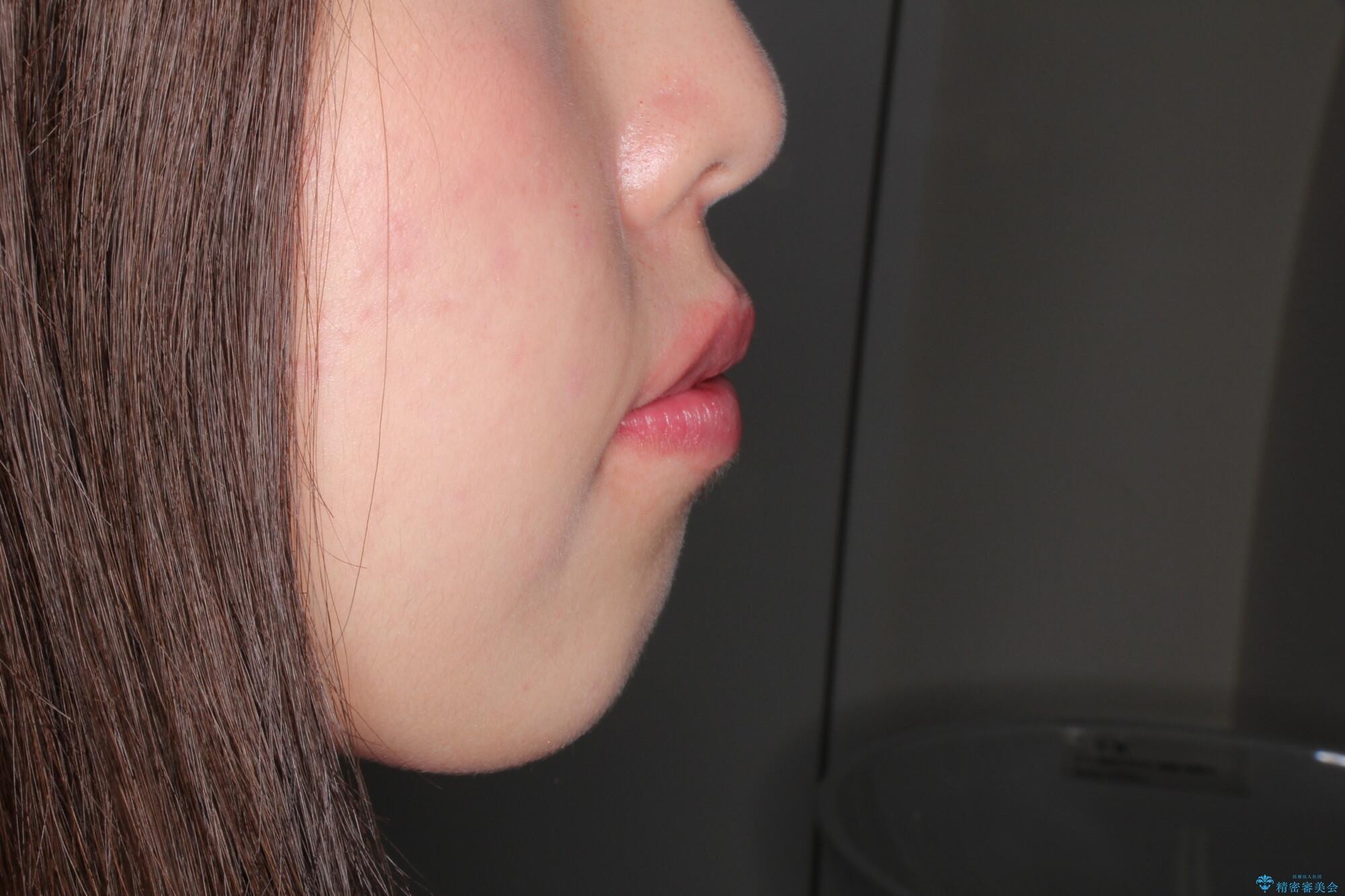 犬歯が変な位置にある 抜歯矯正により正しい位置への治療前(顔貌)