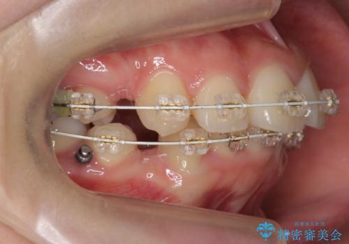 20代女性 出っ歯 口元を引っ込めたいの治療中