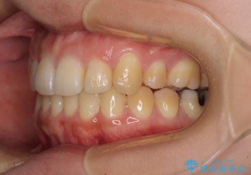 八重歯の抜歯矯正 補助装置を用いたインビザライン矯正の治療後