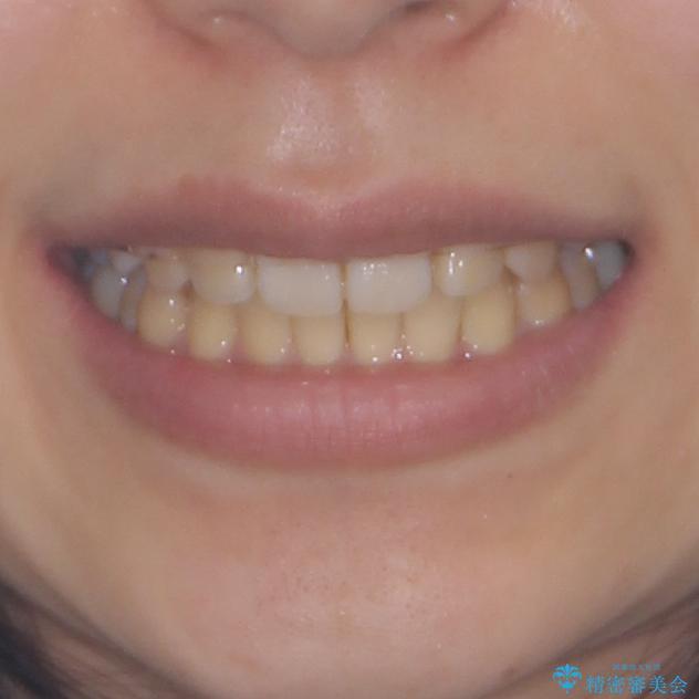 八重歯の抜歯矯正 補助装置を用いたインビザライン矯正の治療後(顔貌)