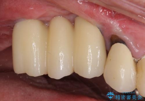 上顎奥歯の欠損をインプラントで補綴治療の治療後