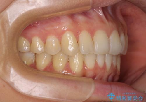 インビザラインによる矯正治療 カリエールディスタライザーを用いた奥歯の咬み合わせ改善の治療後