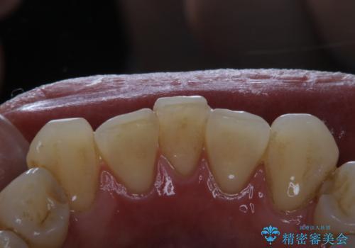 歯医者に久しぶりの来院でPMTC60分コースの治療前