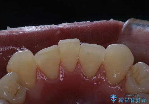 歯医者に久しぶりの来院でPMTC60分コースの治療後