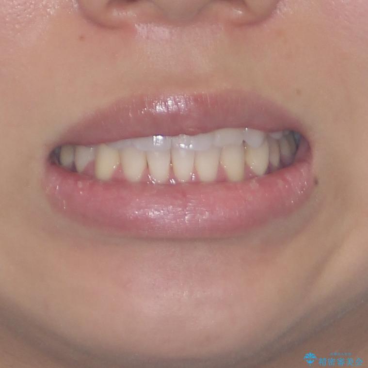 八重歯と奥歯のクロスバイト 上顎骨を拡大してインビザラインで矯正の治療後(顔貌)