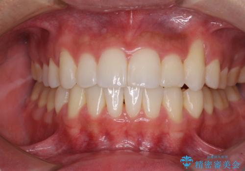 八重歯と奥歯のクロスバイト 上顎骨を拡大してインビザラインで矯正の治療後