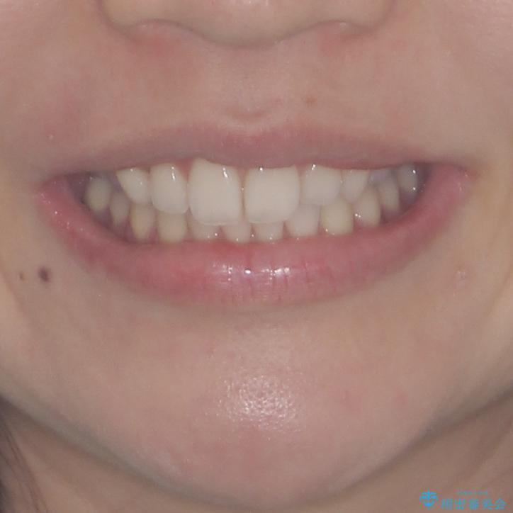 狭い上顎骨を拡大 急速拡大装置を併用したインビザライン矯正の治療後(顔貌)