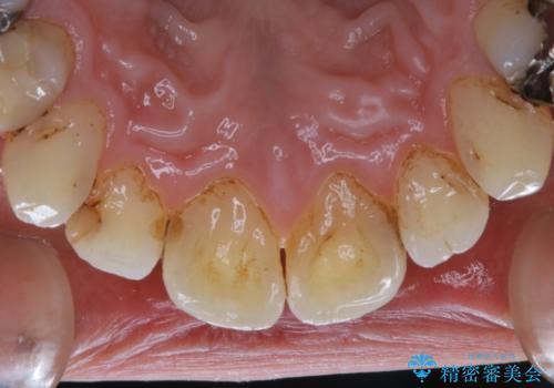 虫歯の治療を始める前にPMTCできれいにの治療前