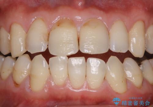 虫歯の治療を始める前にPMTCできれいにの治療後