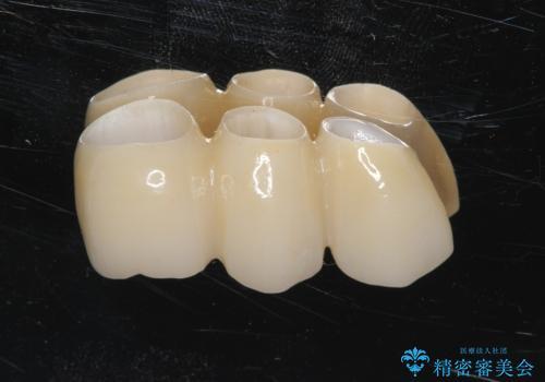 歯がぐらぐら 上顎洞底挙上術を併用した奥歯のインプラント 50代男性の治療中