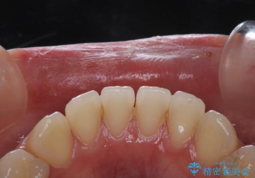 治療の前にPMTCできれいでツルツルな歯にの治療前