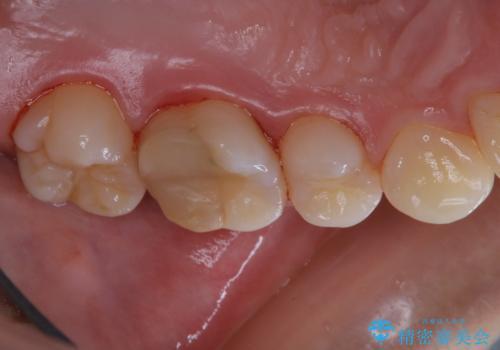 治療の前にPMTCできれいでツルツルな歯にの治療後